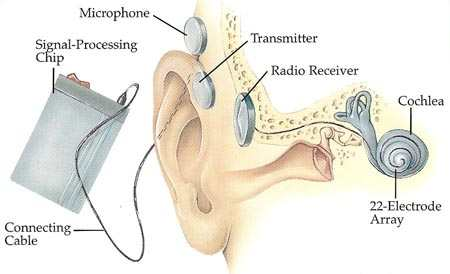 Sravan cochlear implant- Cheaper than imported machines
